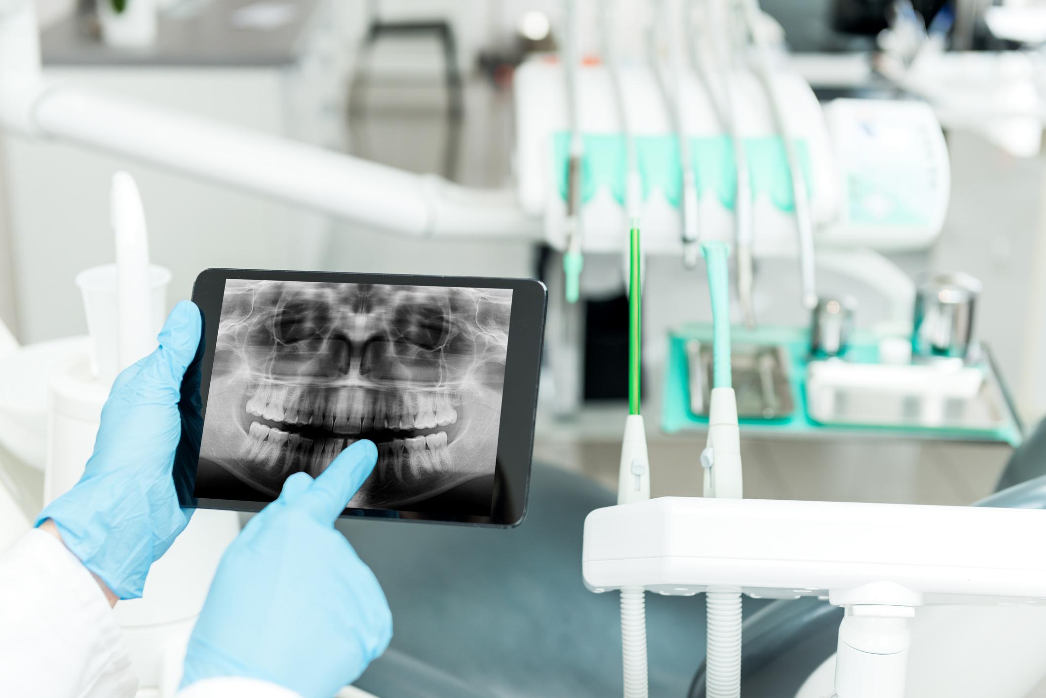 Прицельный снимок зуба в Девяткино