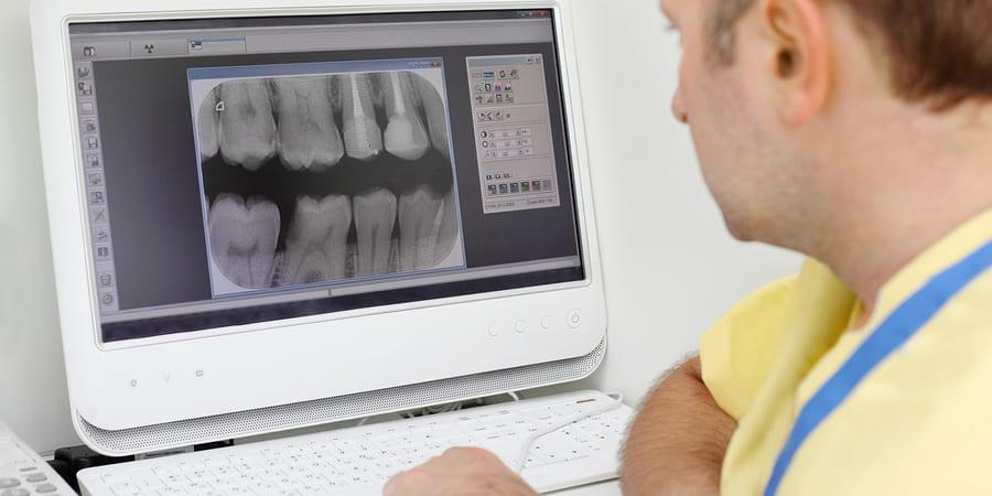 прицельный снимок зуба спб