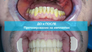 Протезирование верхней челюсти при полном отсутствии зубов