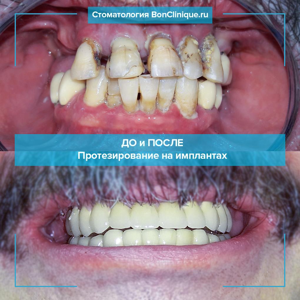 Хронический пародонтит верхней и нижней челюстей